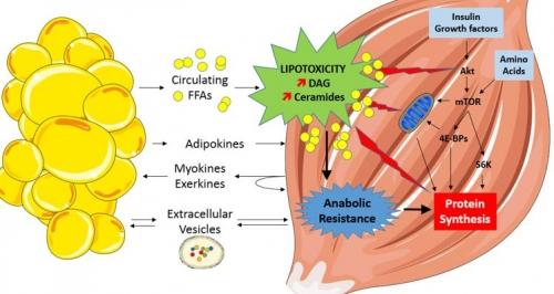 Lipotoxicité musculaire